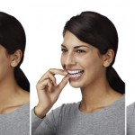 applying invisalign