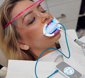 GLO teeth whitening