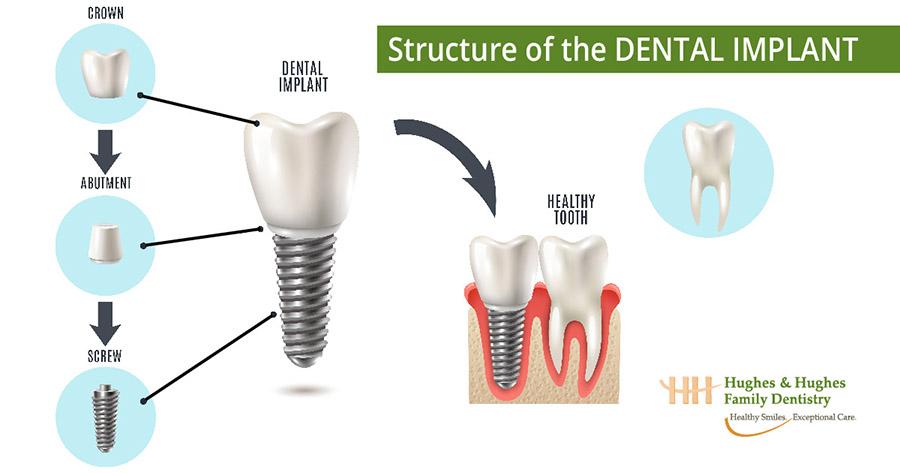 Dental implant process infographic