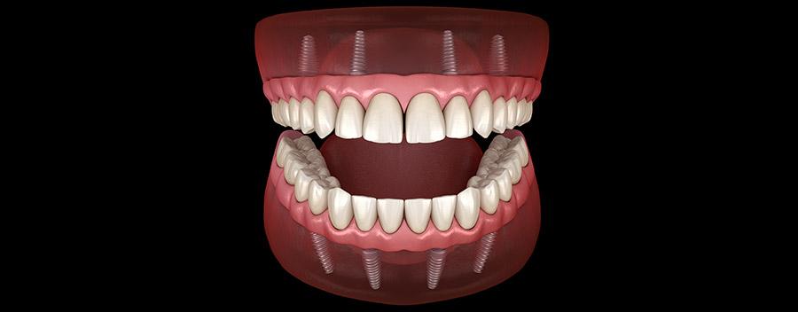 Implant denture illustration