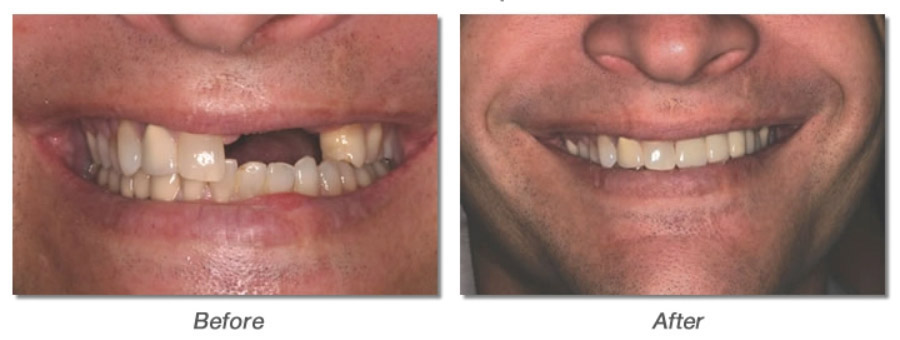 before and after photos of dental implant
