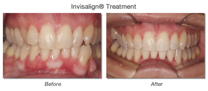 Invisalign® Treatment