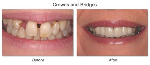 Crowns & Bridges