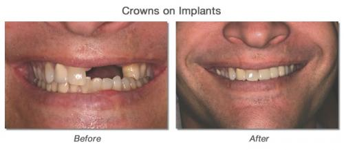 Crown on Implants